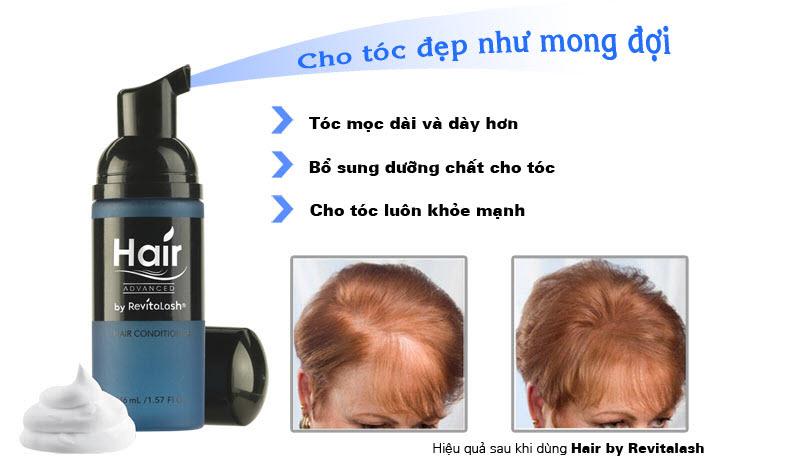 Serum mọc tóc trị hói đầu số một không hai Hair Revitalash USA - 2